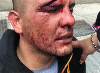 Repudio a la represión frente al Ministerio de Desarrollo Social